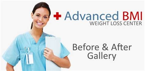 Weight loss surgery before and after - Advanced BMI