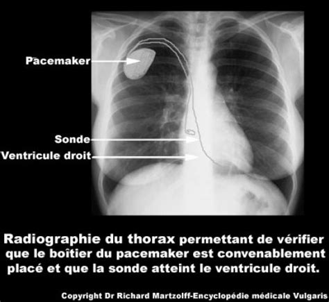 Image, Photo Pacemaker (radiographie), Cardiologie